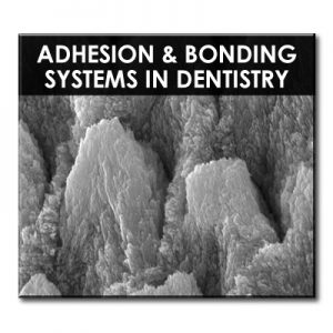 RDS-Adhesion_Bonding-product_image